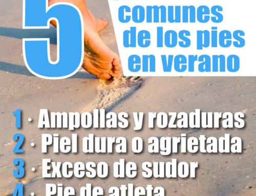 5 problemas comunes de los pies en verano